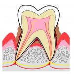 periodontal-01